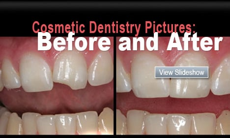 Cosmetic Dentistry Pictures: Before and After