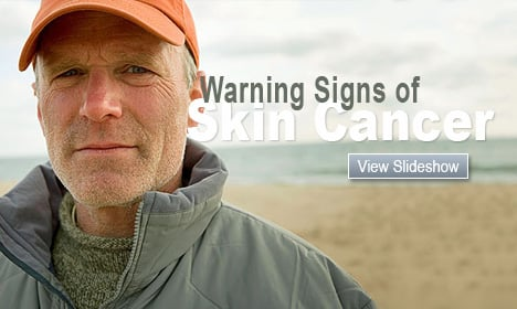 Warning Signs of Skin Cancer