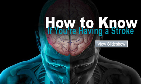 Stroke Pictures Slideshow: A Visual Guide to Understanding Stroke