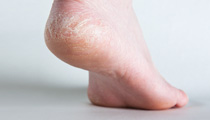 Dry Skin (Xeroderma) Causes, Symptoms, Signs, and Treatment
