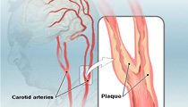 Carotid Arteries Disease