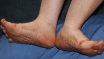 Diabetes Foot Problems 
