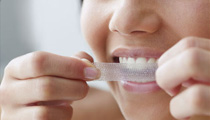 Brighter/Whiter Teeth