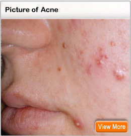 Picture of acne