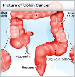 Colon Cancer Symptoms Signs Treatment Survival Rate
