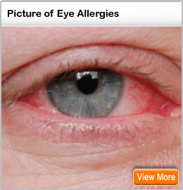 Picture of eye allergies