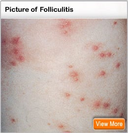 Picture of folliculitis
