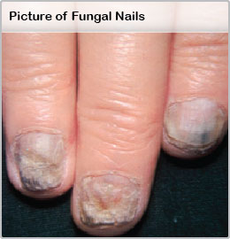 Picture of Fungal Nails