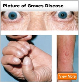 Picture of symptoms of graves disease