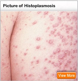 Picture of skin lesions of disseminated histoplasmosis
