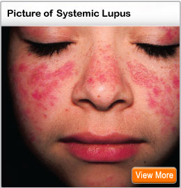 Picture of Lupus