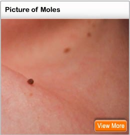 Picture of moles