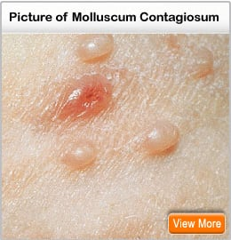 Picture of molluscum contagiosum