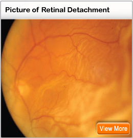 Picture of retinal detachment