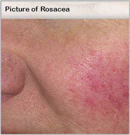 Picture of Rosacea