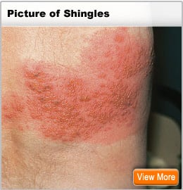 Picture of shingles