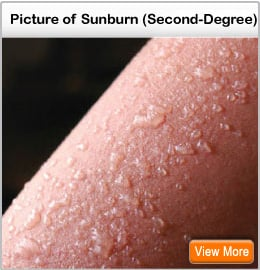 Picture of 2nd degree sunburn