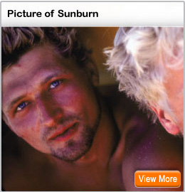 Picture of a sunburn