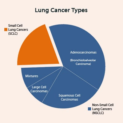 Cancer symptoms causes treatment what are the types of lung cancer