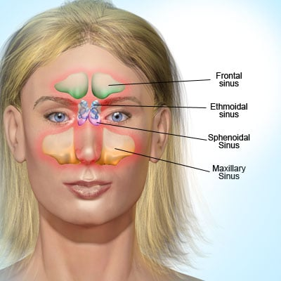 Sinus Infection Sinusitis Symptoms Causes Treatment