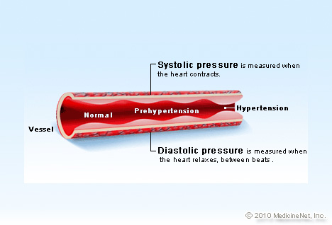 Hypertension Illustration