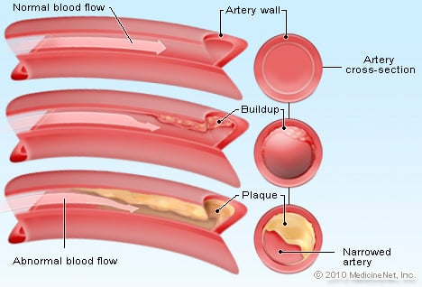 Cholesterol Illustration