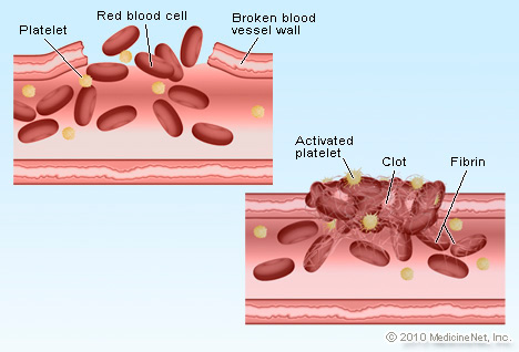 Picture of Blood Clot