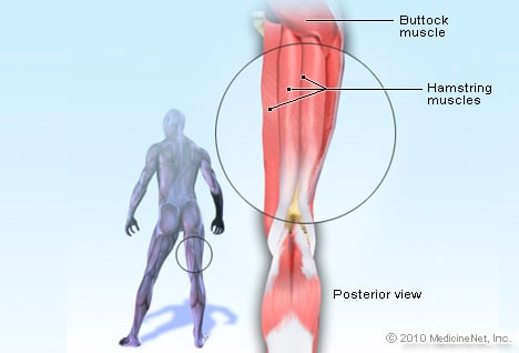 hamstring muscle picture image on medicinenet, Muscles