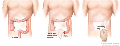 Resection of the colon with colostomy. Part of the colon containing the cancer and nearby healthy tissue are removed, a stoma is created, and a colostomy bag is attached to the stoma.