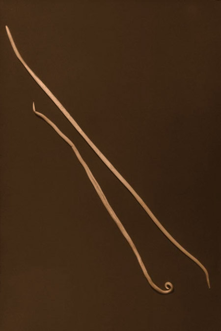 Figure 1: Ascariasis lumbricoides nematode worms (male on left, female on right); females can reach lengths of over 12 inches (26.4 cm).