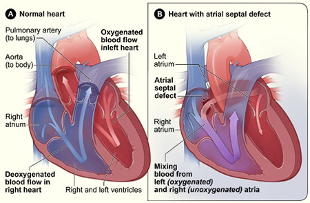 Picture of a cross-section of a normal heart and a heart with an atrial septal defect.