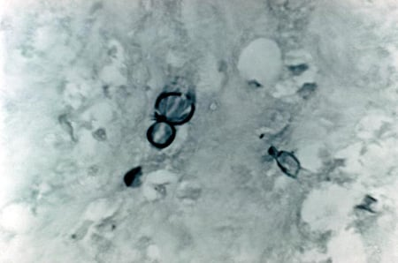 Picture of yeast-like cells of <i>Blastomyces dermatitidis</i> from a patient with  blastomycosis