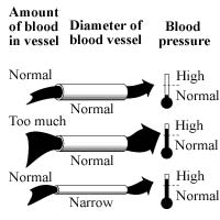 Hypertension can result from too much fluid in normal blood vessels or from normal fluid in narrow, stiff, or clogged blood vessels.