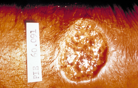 Picture of a crater lesion of leishmaniasis, skin.