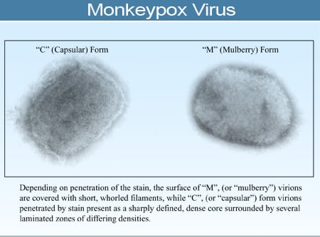 Monkeypox virus, brick-shaped negative stained virus grown in tissue cultures, visualized by electron microscopy