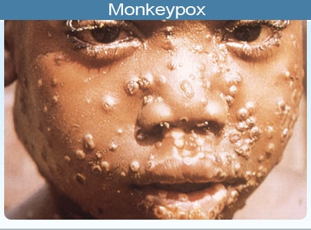 Picture of the pustules/papules of characteristic monkeypox rash