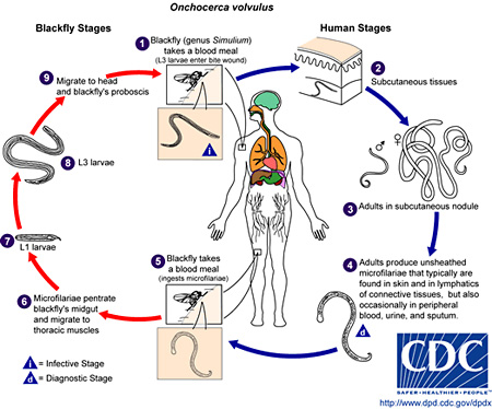 Picture of the life cycle of O. volvulus