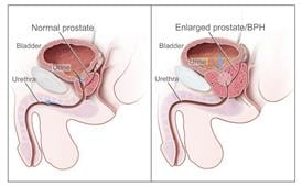 Picture of benign prostatic hyperplasis (BPH)