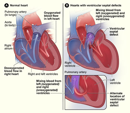 Picture of a cross-section of a normal heart and a heart with a ventricular septal defect.