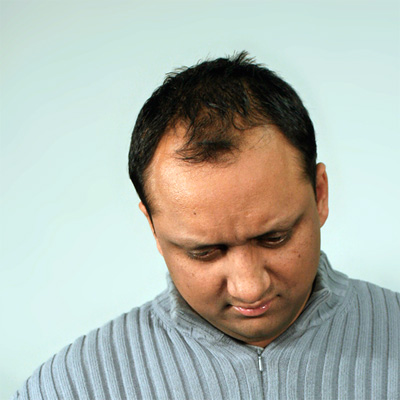 Picture of male-pattern baldness