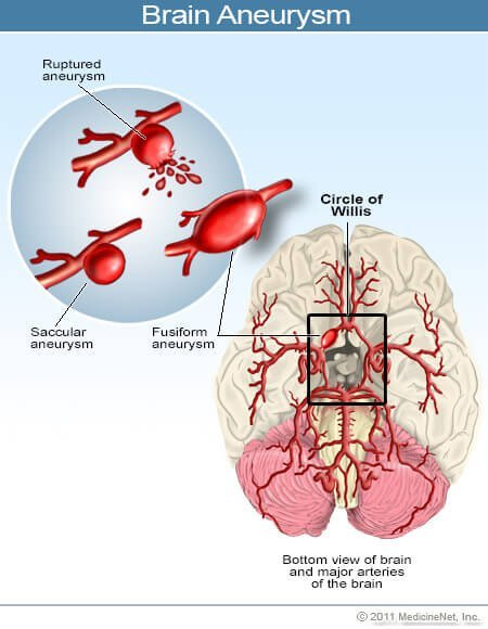 Picture of a brain aneurysm
