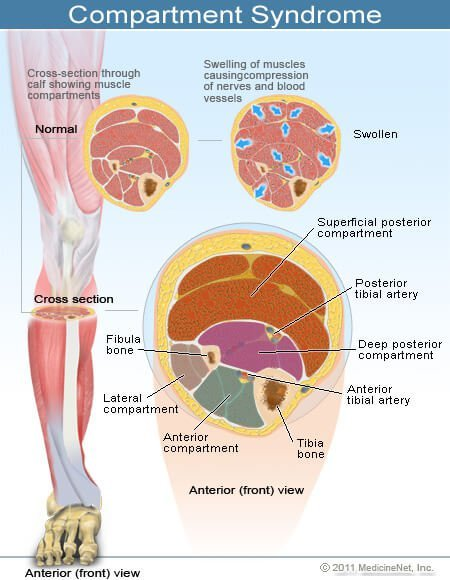 compartment syndrome symptoms, treatment, causes - what causes, Skeleton