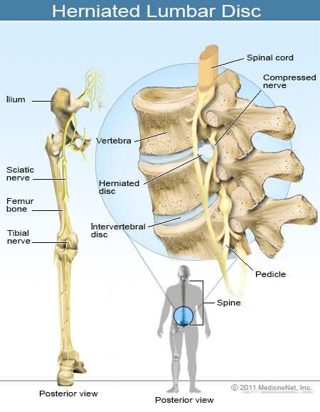 Picture of a herniated disc, a common cause of sciatica