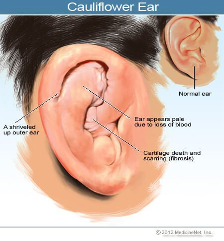 Picture of a normal ear, and cauliflower ear.