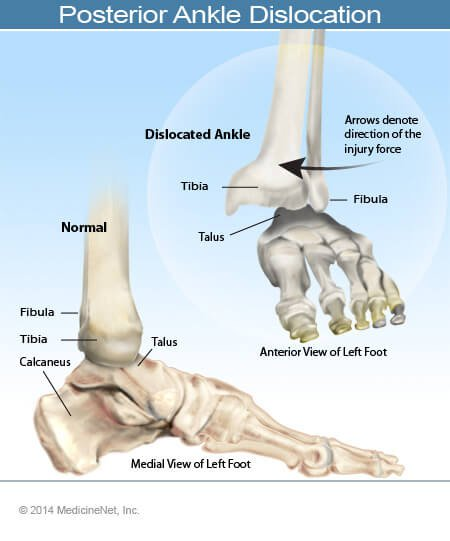 Picture of a dislocated ankle