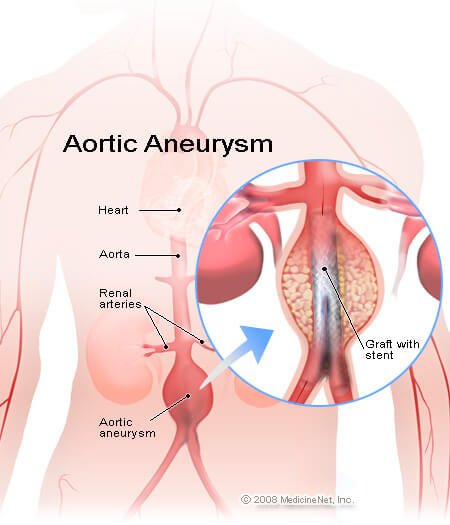 abdominal aortic aneurysm: facts on screening and repair, Human Body