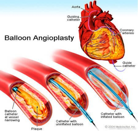 Picture of a coronary ballooon angiogram