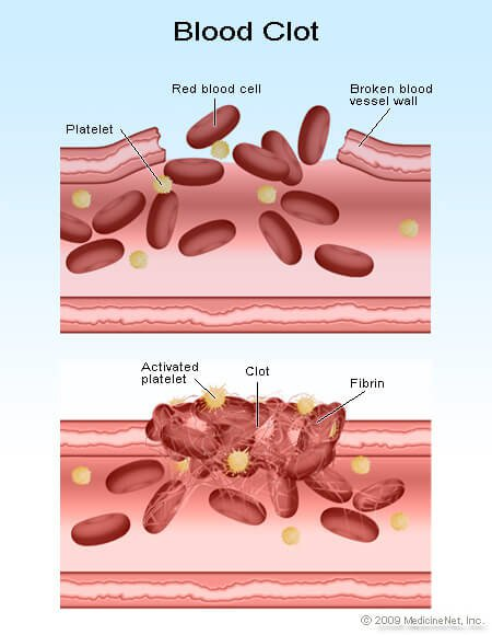 Picture of how red blood cells and platelets form a blood clot
