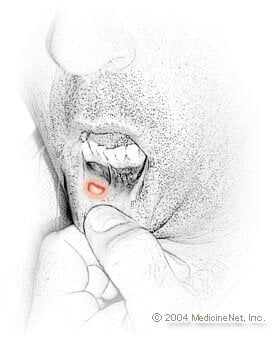 Cankersore (aphthous ulcers) Illustration