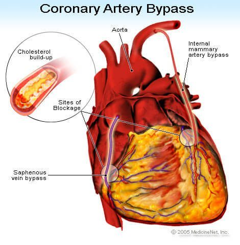 Coronary Artery Bypass illustration